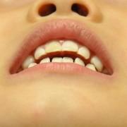 歯科検診、ユッチ編