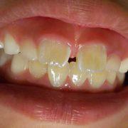 ユッチ7歳、矯正歯科初受診